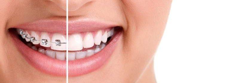 apparecchio invisibile per denti