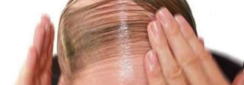 caduta capelli rimedio